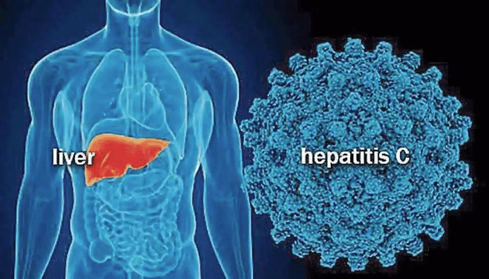 Ηπατίτιδα C συμπτώματα: Άμεση εξέταση όσων γεννήθηκαν 1945-1980