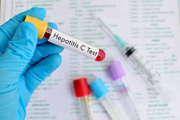 Ηπατίτιδα C Συμπτώματα για όσους έχουν γεννηθεί έως το 1980